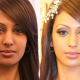 Skin Whitening injections Pakistan Price